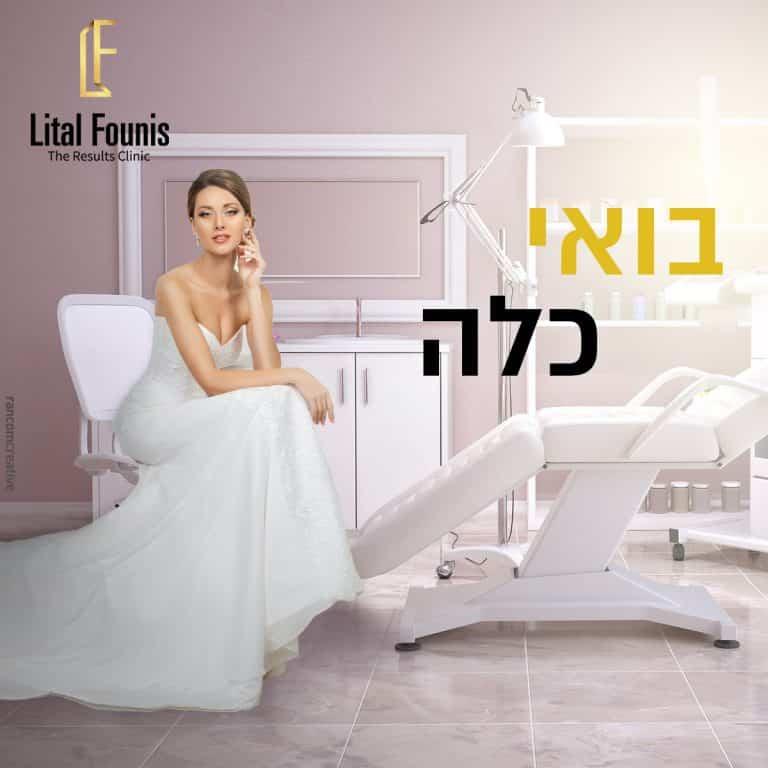 ליטל פוניס (3)